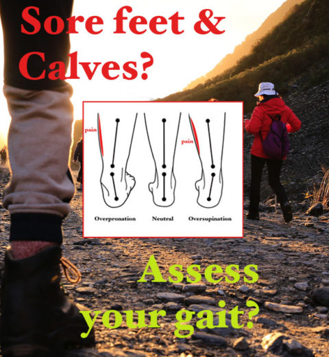 Soar feet and calves?
